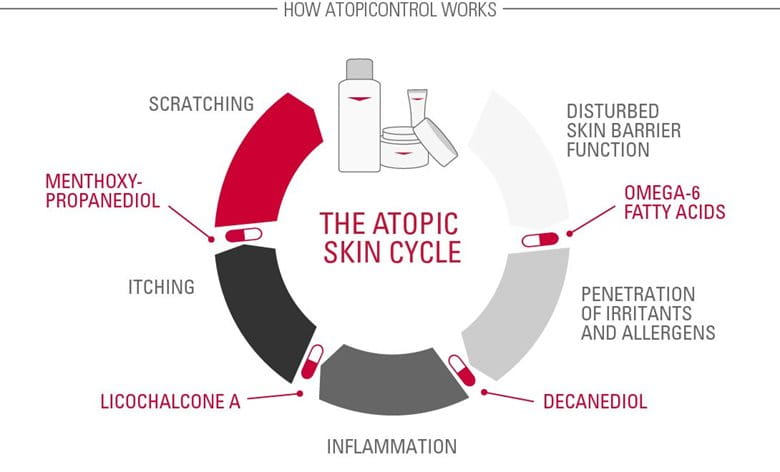 Illustration of Atopic skin cycle.