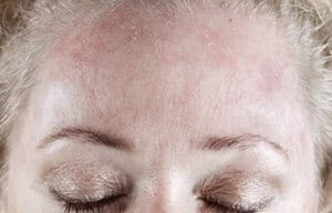 Woman´s forehead with red and scaly skin