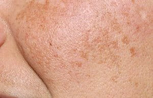 Melasma is also known as the mask of pregnancy.