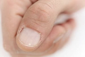 Cracked skin on thumb: cuticles